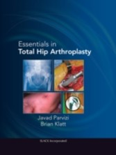 Essentials in Total Hip Arthroplasty